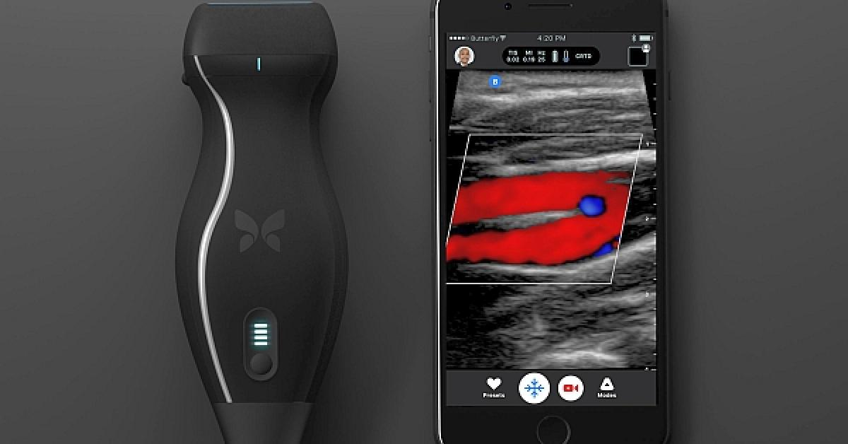 Pocket-sized affordably-priced ultrasound connects to an iPhone