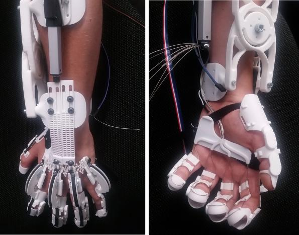 Exoskeleton makes paralyzed hand functional again