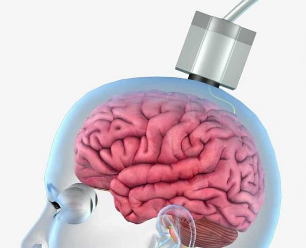 Wireless 'thought into action' brain sensor begins benchtop testing