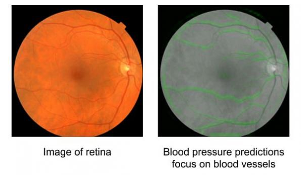 Google algorithm predicts cardiovascular risk from eye images