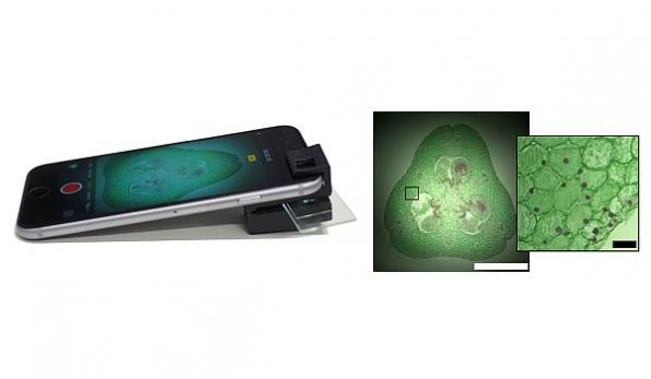 3D-printed clip-on turns smartphone into microscope
