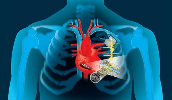 Harvesting the heart's energy to power implantables