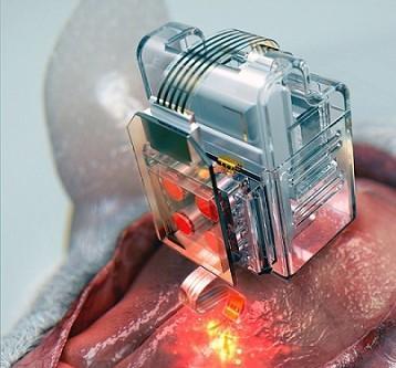 neural implant