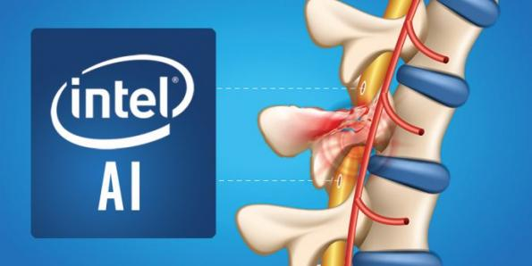 Intel pushes AI to bridge spinal gap in paralyzed patients