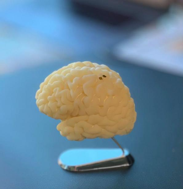 Reserchers develop brain implant for wireless prostheses control