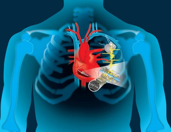 Harvesting the heart's movement to power implants