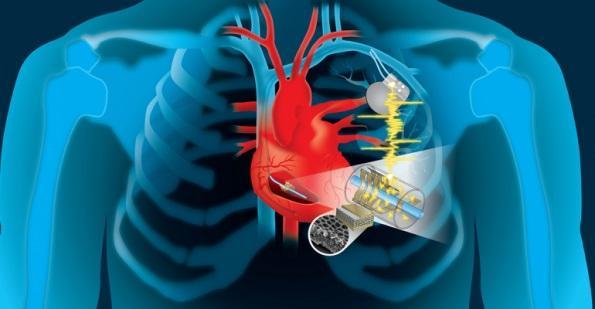 Production d'énergie piézoélectrique pour les implants médicaux