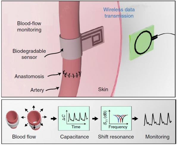 Wireless blood flow sensor wraps around arteries, self-resorbs